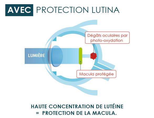 Avec Protection LUTINA
